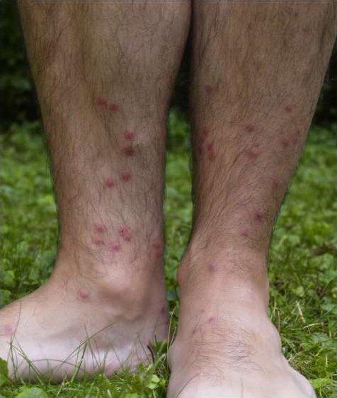 Cercarial_dermatitis_lower_legs